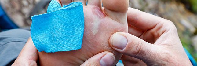 soigner une ampoule au pied contre les ampoules des pieds astuce naturelle